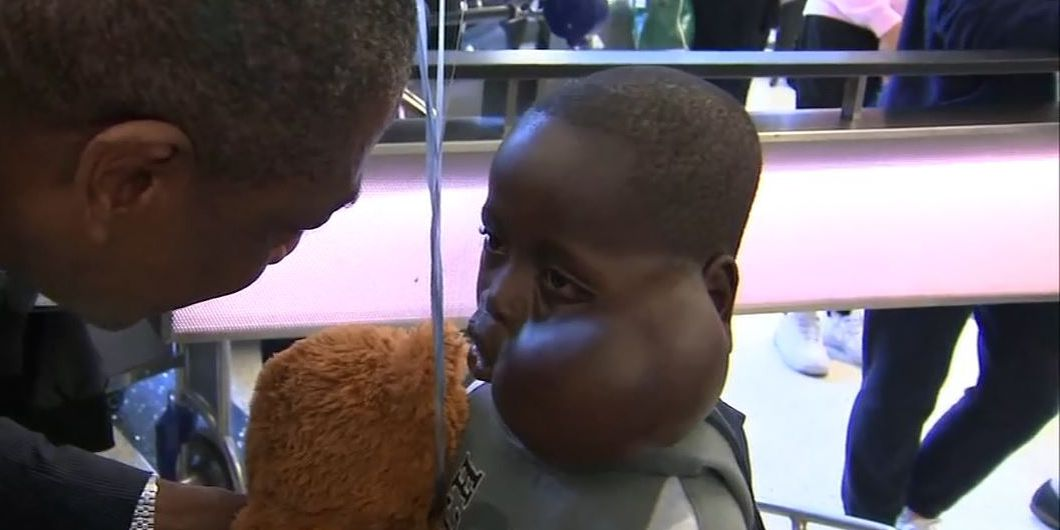 African boy brought to US by Dikembe Mutombo passes away after surgery