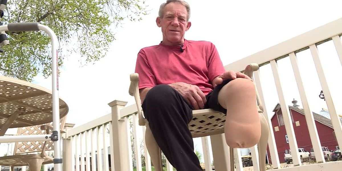 Man, 63, amputates own leg to save self from farming accident
