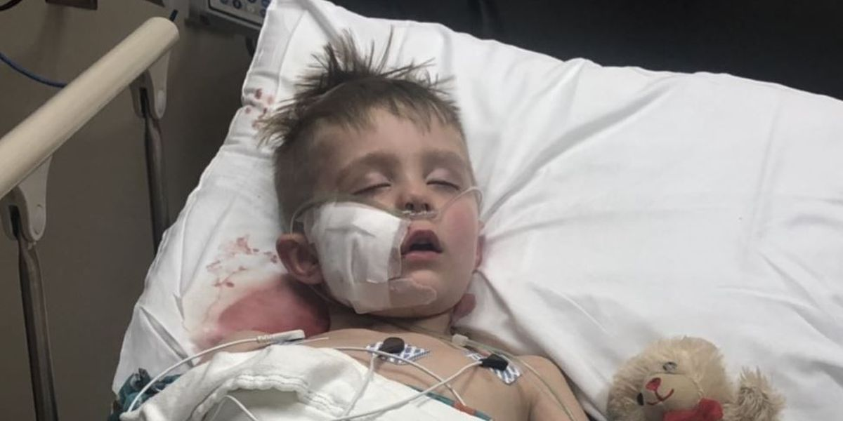 'I just want my old face back.' Shriners helping Idaho boy after dog attack