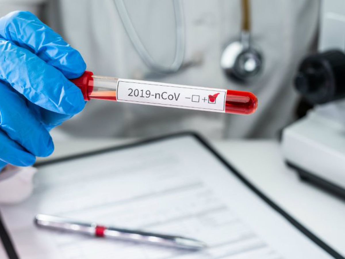 More than 1K confirmed coronavirus cases, 19 deaths in Ohio