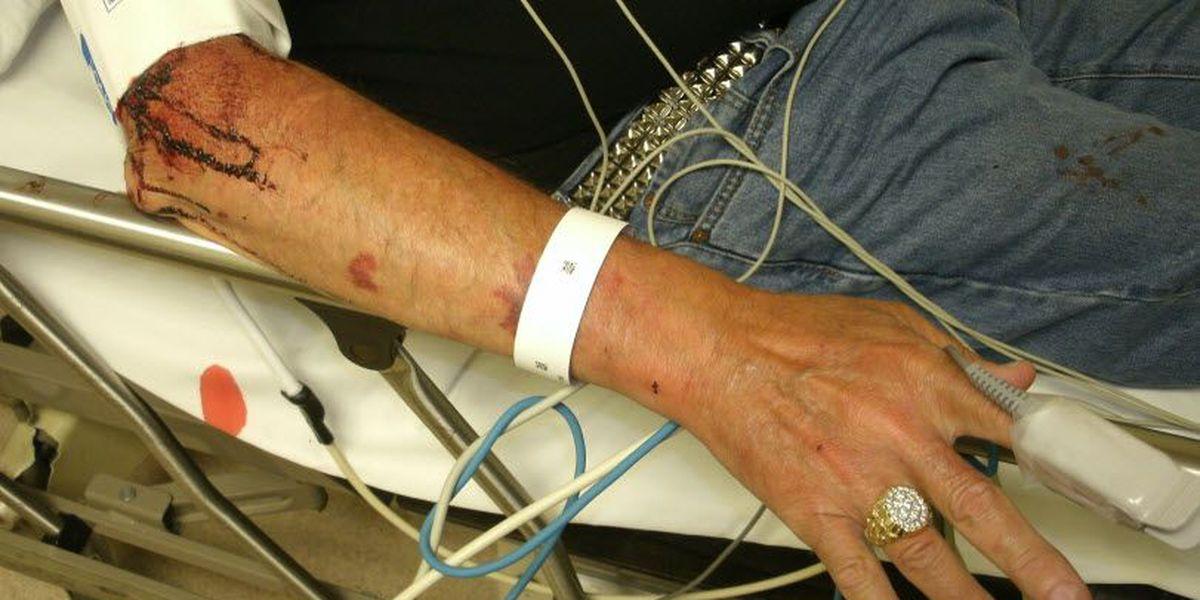 Lawsuit: 66-year-old endured 'rough ride' in Hamilton County sheriff's van