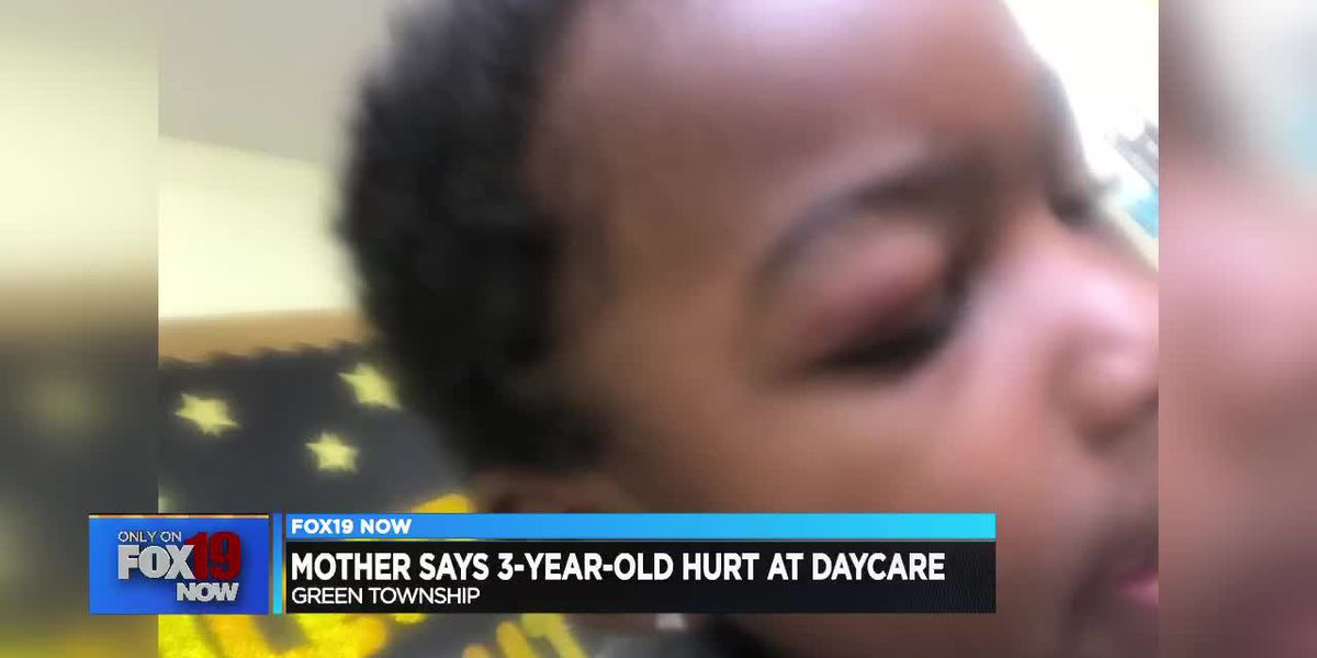 Mother says she wasn't contacted after 3-year-old got black eye at daycare