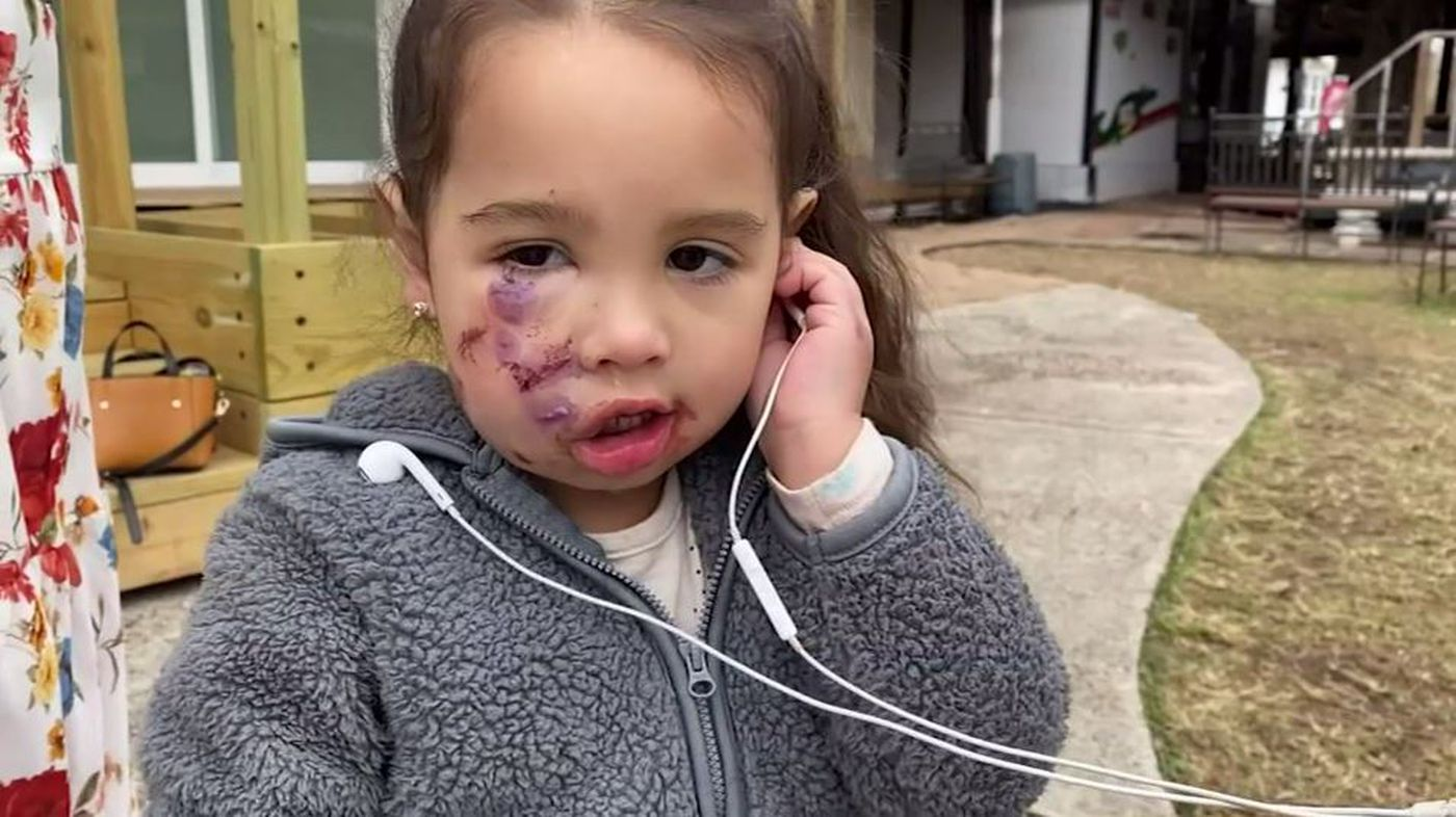 GRAPHIC: Girl, 3, bitten by dog wearing service vest in Texas restaurant