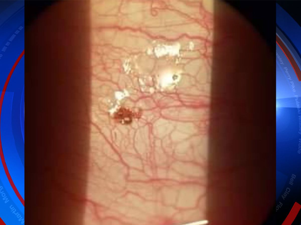 GRAPHIC: Kentucky man finds tick in his eye