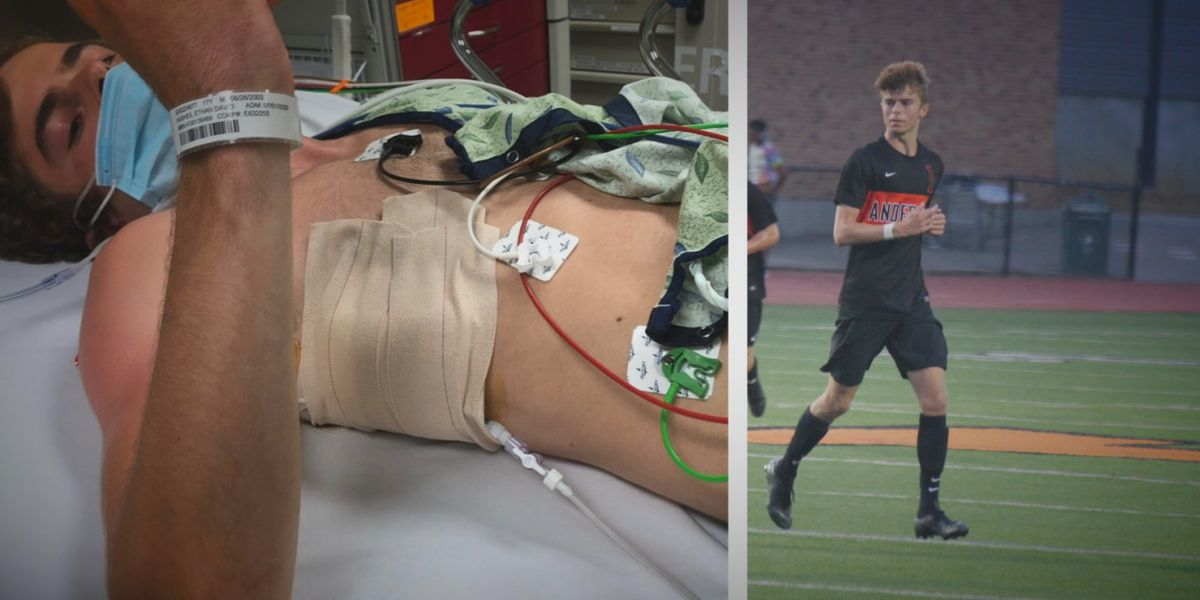 Anderson High School soccer player still kicking after two collapsed lungs