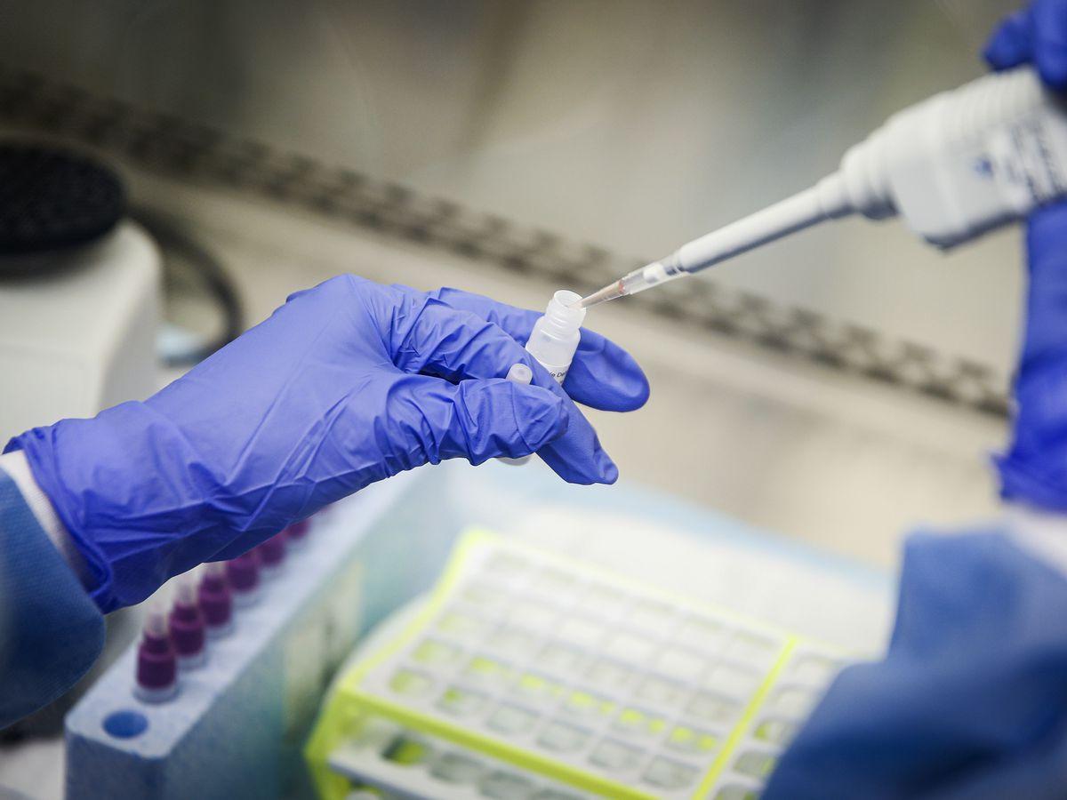 2nd positive coronavirus case diagnosed in Warren County
