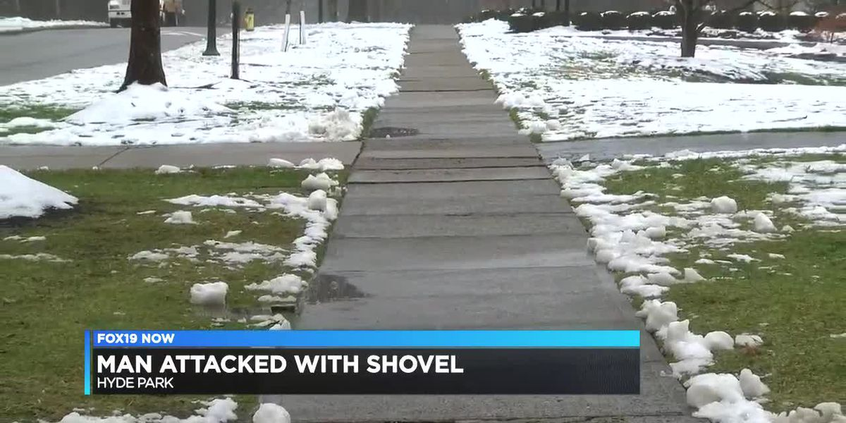 Man attacked with shovel