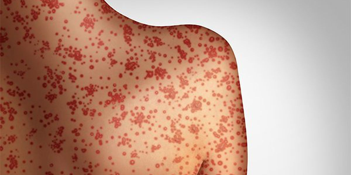 Measles case confirmed in St. Clair County, state count at 44
