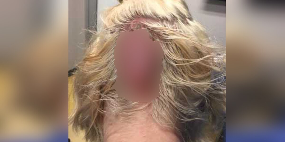 Woman claims bad hair appointment left her with third-degree burn