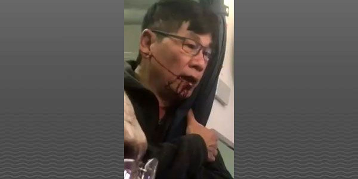 Editorial: Consider all sides of the United Airlines situation